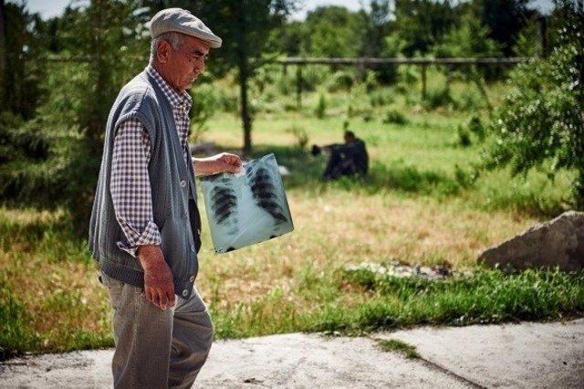 Hombre con tuberculosis