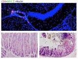 Descubren una nueva vía neuronal causante de los fallos orgánicos ligados al estrés crónico