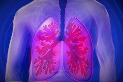 Pacientes denuncian que el diagnóstico de la fibrosis pulmonar idiopática puede tardar hasta 2 años