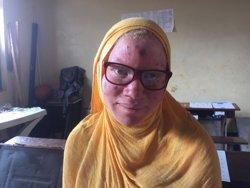 Ópticos de la Fundación Cione Ruta de la Luz ayuda a niños con albinismo en Tanzania