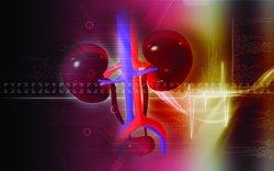 El 90% de los enfermos renales crónicos no ha tenido síntomas antes de llegar a esta fase aguda de la enfermedad