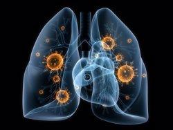 Los pacientes con cáncer de pulmón esperan 10 días para iniciar el tratamiento en la sanidad privada, según un estudio