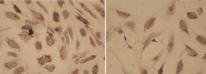 Investigadores españoles hallan que una terapia combinada puede mejorar el tratamiento de la mielofibrosis