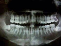 La periodontitis puede ser un factor de riesgo para desarrollar demencia, según un estudio