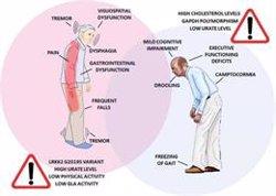 Investigadores explican por qué el Parkinson afecta de forma diferente a mujeres y hombres