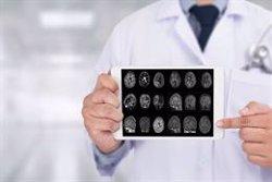 Investigadores demuestran cómo una clase de proteínas puede regular el desarrollo del Alzheimer o Parkinson