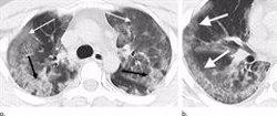 Los radiólogos aclaran que TC y radiografías no son
