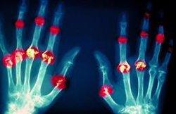 Experto señala que se ha reducido el número de diagnósticos de pacientes con artritis reumatoide durante la pandemia