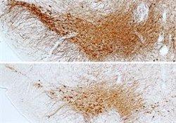 La diabetes es un factor de riesgo para desarrollar Parkinson, según un estudio liderado por el CSIC