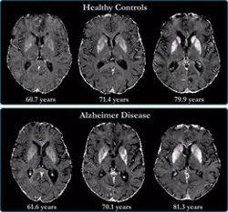 Investigadores españoles descubren una nueva alteración en el cerebro de las personas con Alzheimer