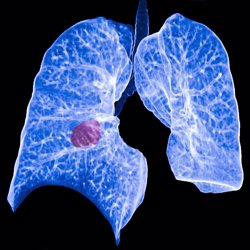 Hallan una nueva terapia que podría superar la resistencia a la inmunoterapia en cáncer de pulmón avanzado