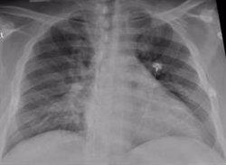 Un tercio de hospitalizados por COVID-19 presenta alteraciones pulmonares un año después, según un estudio