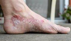 Descubren un nuevo tipo de célula en la piel que contribuye a enfermedades como la dermatitis atópica y la psoriaris